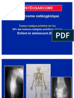 03- Osteosarcome_2