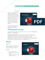 Principales defectos visuales