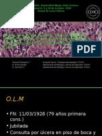 Leucoplasia Verrucosa Proliferativa