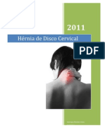 Hérnia de Disco Cervical