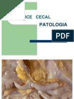 Apendice Cecal Copia