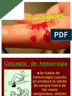 Hemorragias y Shock