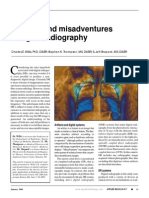 Artifacts and Misadventures in Digital Radiography