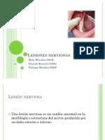 Lesiones nerviosas
