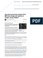 James Walbert - Secretly Forced Brain Implant Pt II