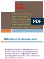 Fundamentals of Tooth Preparation