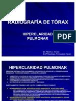 RADIOGRAFÍA DE TÓRAX. PATRONES RADIOLÓGICOS. HIPERCLARIDAD PULMONAR