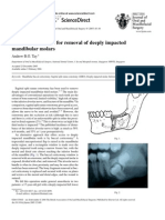 British Journal of Oral and Maxillofacial Surgery 45-1-83 84 Buccal Corticotomy for Removal of Deeply Impacted Mandibular Molars Tay