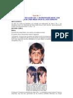 MALOCLUSIÓN DE CLASE II DIV. 1, EN DENTADURA MIXTA, CON DESVIACIÓN DE LÍNEA MEDIA HACIA EL LADO DERECHO
