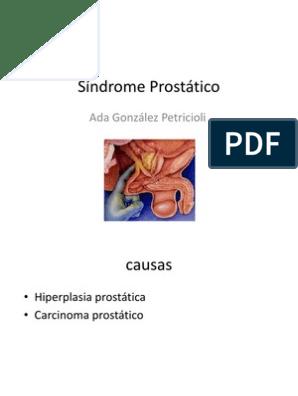 síndrome prostático que es en