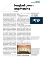 11.TSL Surgical Crown Lengthening