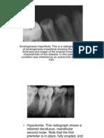 Dental Anomolies