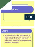 Ulcera Gastrica e Insuficiencia Hepatica