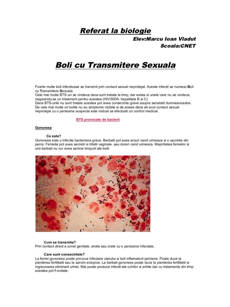 Infectii cu transmitere sexuala (ITS) | revistafoto.ro