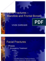 Facial Fractures Concise