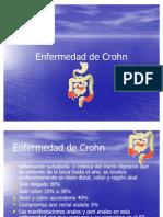 52.Enfermedad De Crohn