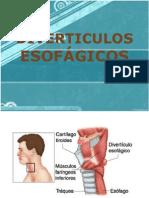 Copia de DIVERTICULOS ESOFÁGICOS