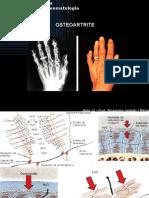 6831812-Aula12-Osteoartrite