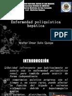 enfermedad poliquistica hepatica