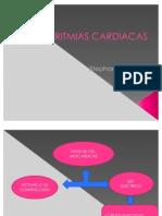 Arritmias Cardiacas.pptx Steffi