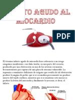 Angina de Pecho Infarto Al Miocardio