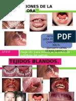 Expo Patologia Alteraciones Mucosa Oral
