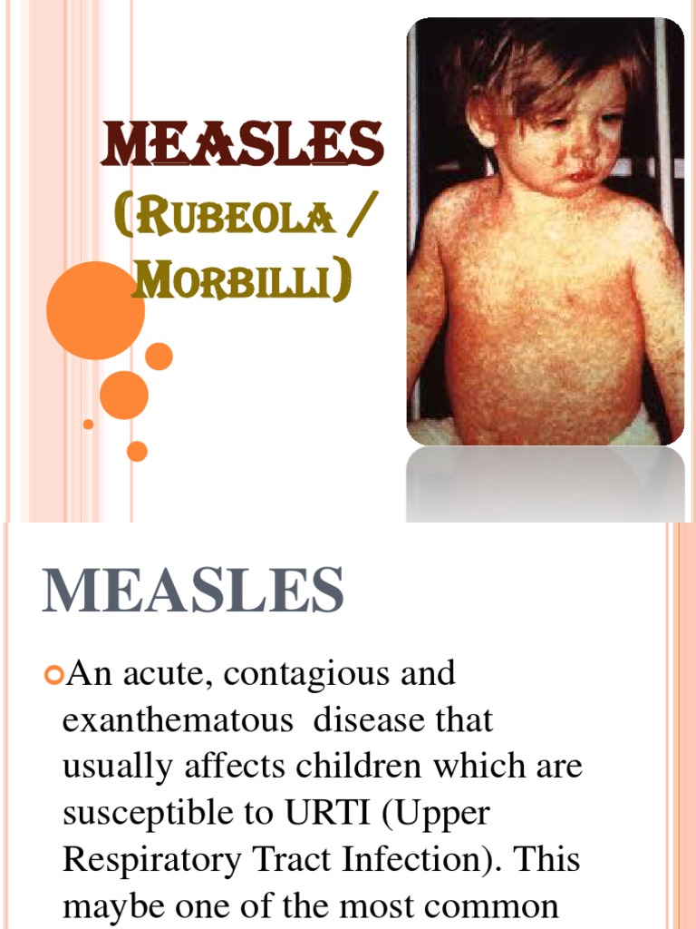 health adult threat Measles to