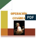 Cesarea1