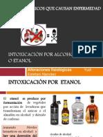 Intoxicación por alcohol etílico  o etanol