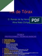 INTERPRETACION DE Rx TORAX AP, PA Y LATERAL
