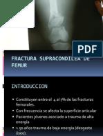 Fractura Supracondilea de Femur