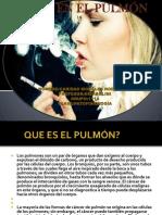 Cancer Del Pulmon-caridad