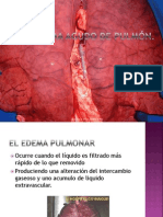 edema-pulmonarfisiopatologico
