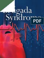 TheBrugadaSyndrome
