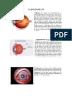 10 Eye Defects