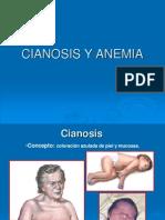 Anemia y Cianosis