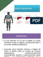 Hepatitis Isquémica
