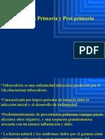 Tbc Post Primaria