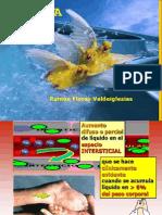 11) Dr. Flores - Edema