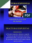 5_FRACTURAS_EXPUESTAS - copia