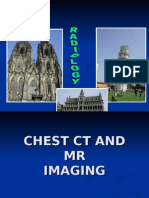Chest and CT MR - f R Villanueva