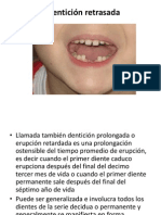 Dentición retrasada