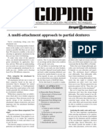 A Multi-Attachment Approach to Partial Dentures