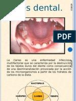 Operatoria Dental en Odontopediatria