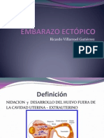 EMBARAZON ECTOPICO