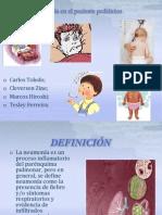 Neumonía en el paciente pediátrico