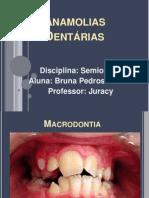 Anamolias Dentárias Bruna!