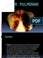 Cancer Pulmonar Rubi