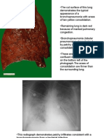 Patho Pulmonary With Notes