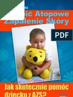 Oswoic Atopowe Zapalenie Skory eBook, Darmowe Ebooki, Darmowy PDF, Download